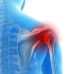 Baseball and Shoulder Injuries